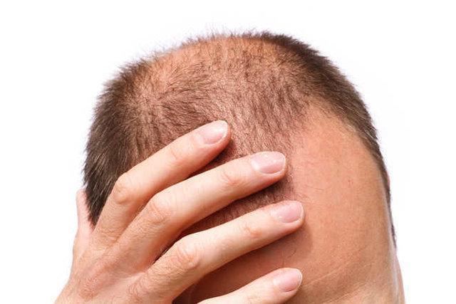 رشد دوباره مو روی پوست آسیب دیده