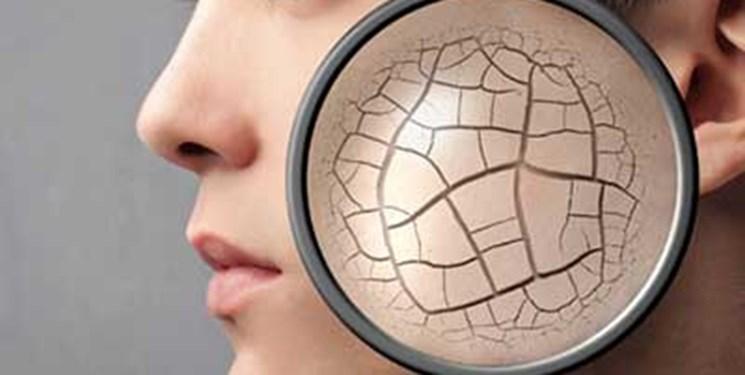 روغن زیتون اکسیری برای خشکی شدید پوست